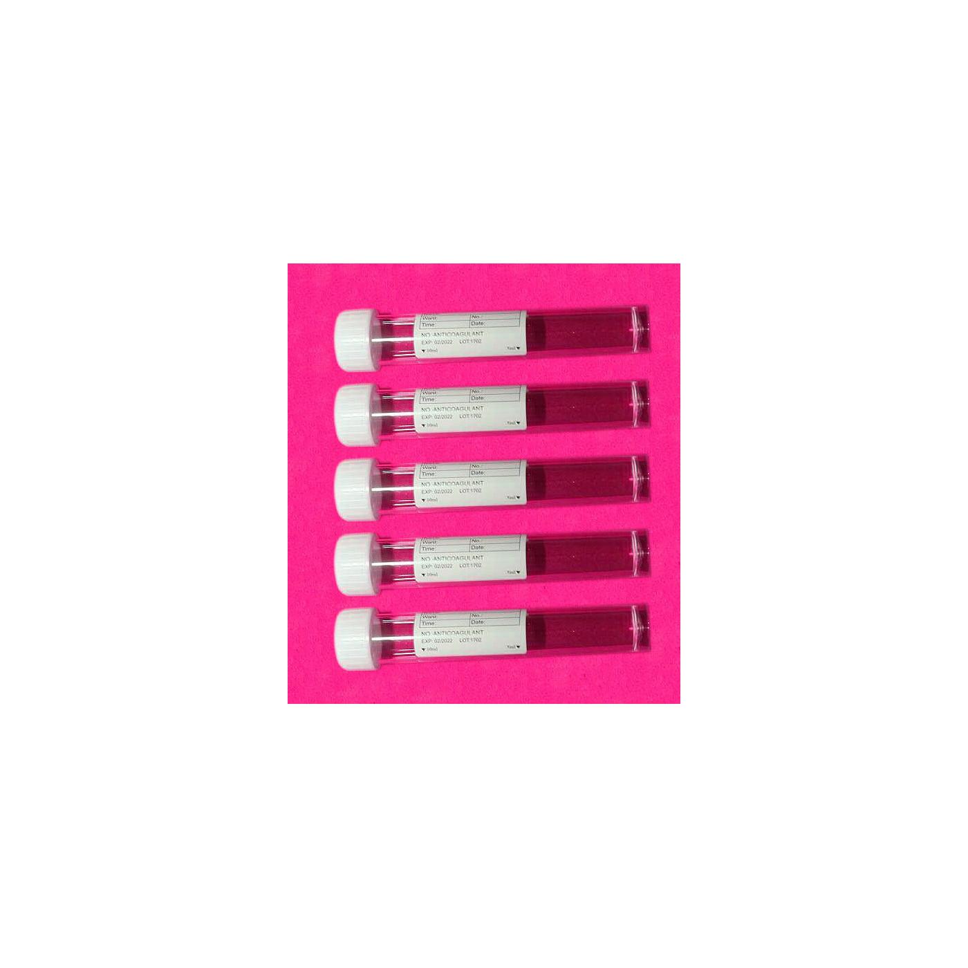 Set van 100 plastic reageerbuisjes (10 ml, polystyreen, met schroefdop)  - 1